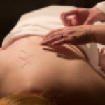 Acupuncture for Back Pain - Photo Courtesy: spine.org